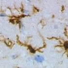 Plaques in hersenen Alzheimerpatiënten