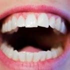De positieve effecten van lachen op je gezondheid