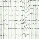 Elektro-encefalografie (EEG)